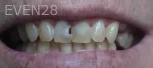 Omid-Barkhordar-Dental-Bonding-before-1
