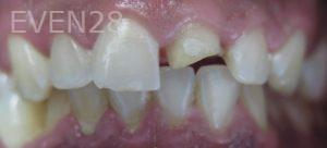 Omid-Barkhordar-Dental-Bonding-before-2