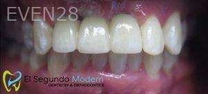 Omid-Barkhordar-Dental-Implants-after-1