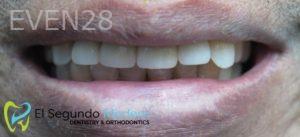 Omid-Barkhordar-Dental-Implants-after-2