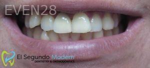 Omid-Barkhordar-Dental-Implants-after-3