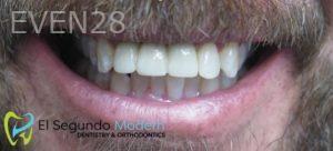 Omid-Barkhordar-Dental-Implants-after-4