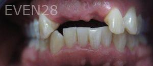 Omid-Barkhordar-Dental-Implants-before-1