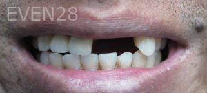 Omid-Barkhordar-Dental-Implants-before-2