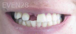 Omid-Barkhordar-Dental-Implants-before-3