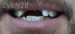 Omid-Barkhordar-Dental-Implants-before-4