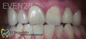 Omid-Barkhordar-Full-Mouth-Rehabilitation-after-1
