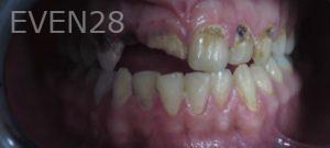 Omid-Barkhordar-Full-Mouth-Rehabilitation-before-1