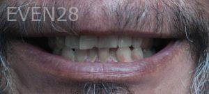 Omid-Barkhordar-Porcelain-Veneers-before-2