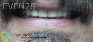 Omid-Barkhordar-Smile-Makeover-after-1