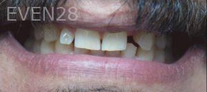 Omid-Barkhordar-Smile-Makeover-before-1