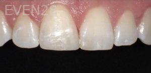 Pegah-Ghassemi-Bakhtiari-Dental-Bonding-after-1