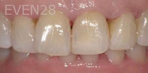 Pegah-Ghassemi-Bakhtiari-Dental-Bonding-after-2