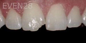 Pegah-Ghassemi-Bakhtiari-Dental-Bonding-before-1