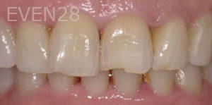 Pegah-Ghassemi-Bakhtiari-Dental-Bonding-before-2