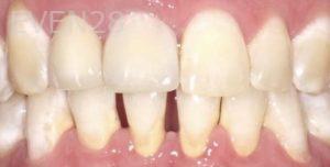 Pegah-Ghassemi-Bakhtiari-Smile-Makeover-before-1