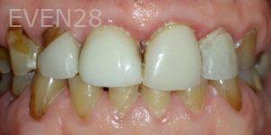 Pegah-Ghassemi-Bakhtiari-Smile-Makeover-before-3