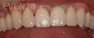 Philip-Shindler-Dental-Implants-after-1