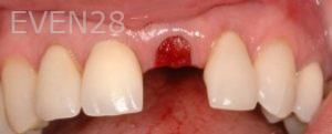 Philip-Shindler-Dental-Implants-before-1