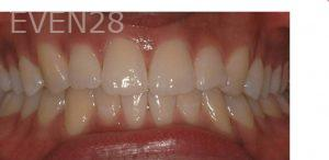 Philip-Shindler-Invisalign-Clear-Aligners-after-3