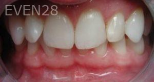 Philip-Shindler-Invisalign-Clear-Aligners-before-2