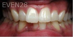 Philip-Shindler-Invisalign-Clear-Aligners-before-3