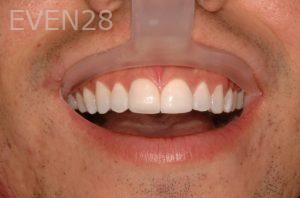 Philip-Shindler-Porcelain-Veneers-after-1