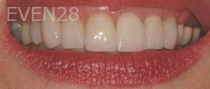 Philip-Shindler-Porcelain-Veneers-after-3