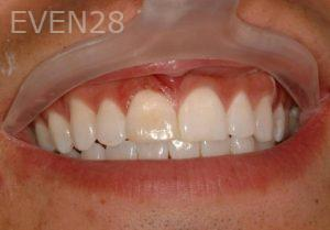 Philip-Shindler-Porcelain-Veneers-before-1