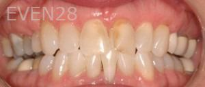 Philip-Shindler-Porcelain-Veneers-before-3