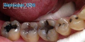 Yosi-Behroozan-Amalgam-Mercury-Removal-before-2