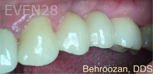 Yosi-Behroozan-Dental-Bridge-after-1