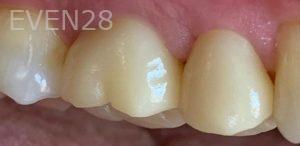Yosi-Behroozan-Dental-Crowns-after-1