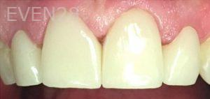 Yosi-Behroozan-Dental-Crowns-after-3