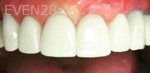 Yosi-Behroozan-Dental-Crowns-after-4