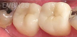Yosi-Behroozan-Dental-Crowns-after-6