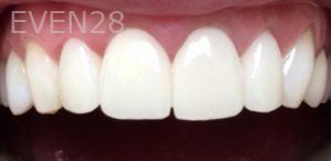 Yosi-Behroozan-Dental-Crowns-after-7
