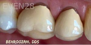 Yosi-Behroozan-Dental-Crowns-before-1