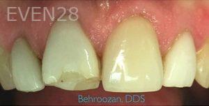 Yosi-Behroozan-Dental-Crowns-before-3