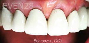 Yosi-Behroozan-Dental-Crowns-before-4