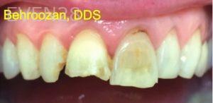 Yosi-Behroozan-Dental-Crowns-before-7