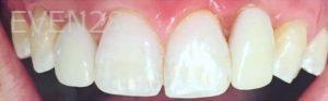 Yosi-Behroozan-Dental-Implants-after-3
