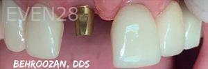 Yosi-Behroozan-Dental-Implants-before-1b