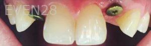 Yosi-Behroozan-Dental-Implants-before-3