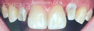 Yosi-Behroozan-Dental-Implants-before-3b