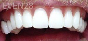Yosi-Behroozan-Dentures-after-1