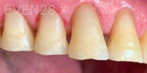 Yosi-Behroozan-White-Fillings-after-1