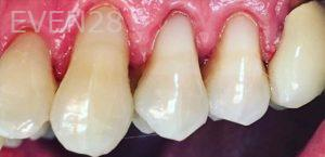Yosi-Behroozan-White-Fillings-after-3