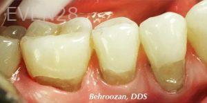Yosi-Behroozan-White-Fillings-before-2