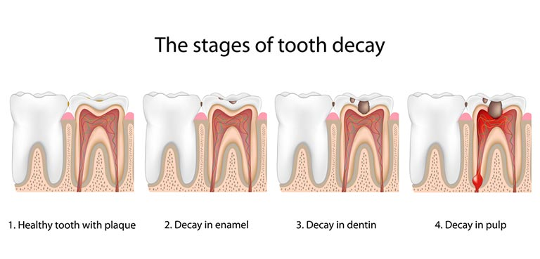 cavity-stages-1